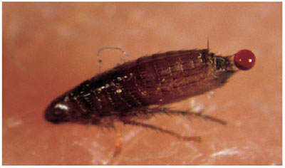 Photograph of an adult cat flea feeding on human skin showing excretion of faeces in form of a blood droplet at its back end.