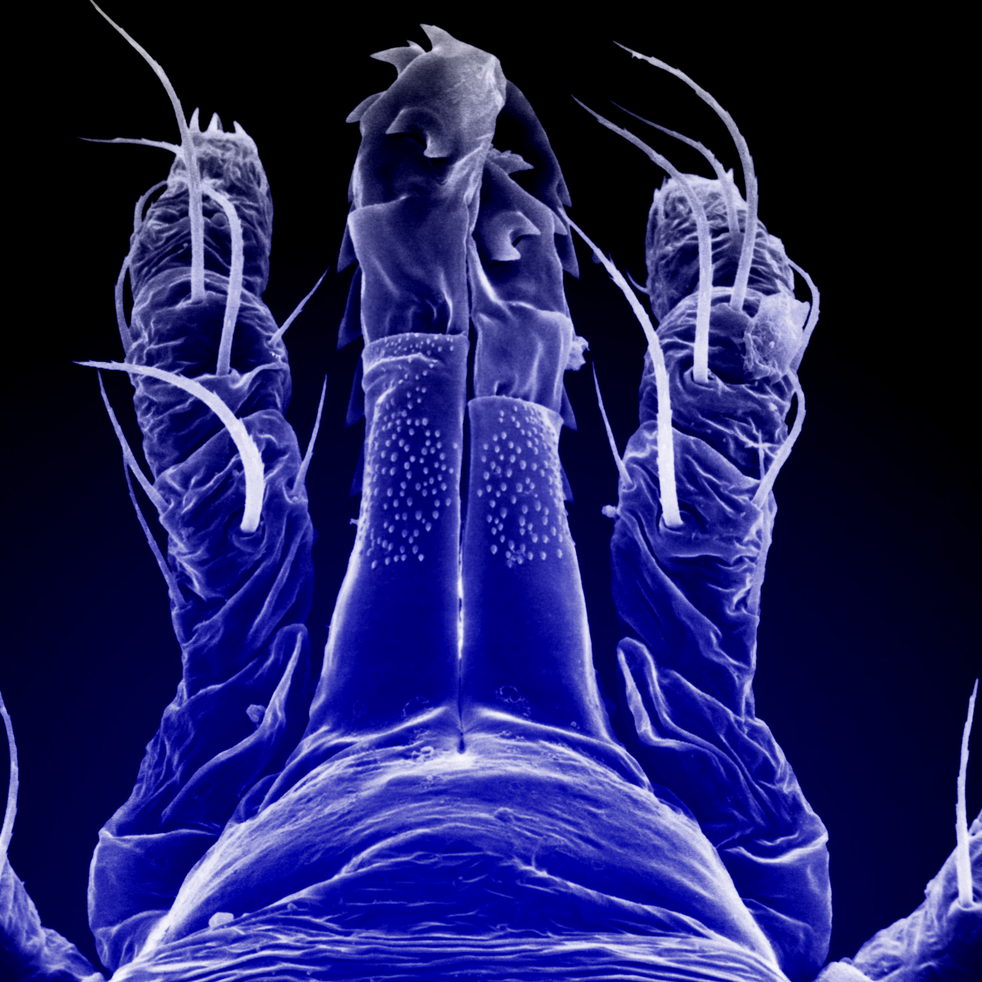 SEM-micrograph of mouth parts of ixodid tick.