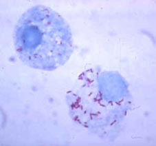 Light microscopic image of a Gimenez stain of tick haemolymph cells infected with Rickettsia rickettsii.