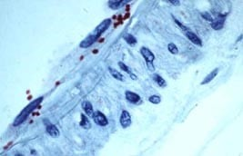 Immunohistological staining of a blood vessel from a human patient with fatal Rocky Mountain spotted fever (RMSF). Red structures indicate Rickettsia rickettsii in endothelial cells.